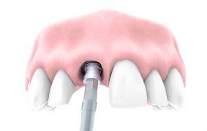 implantes dentales post-extraccion-san-sebastian-de-los-reyes