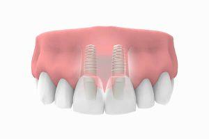 imlpantes dentales en zona estética