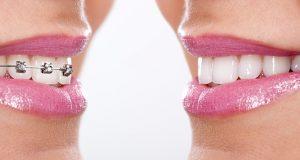 brackets monumentum dental