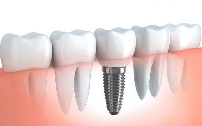 ¿Cómo se hace un implante dental?